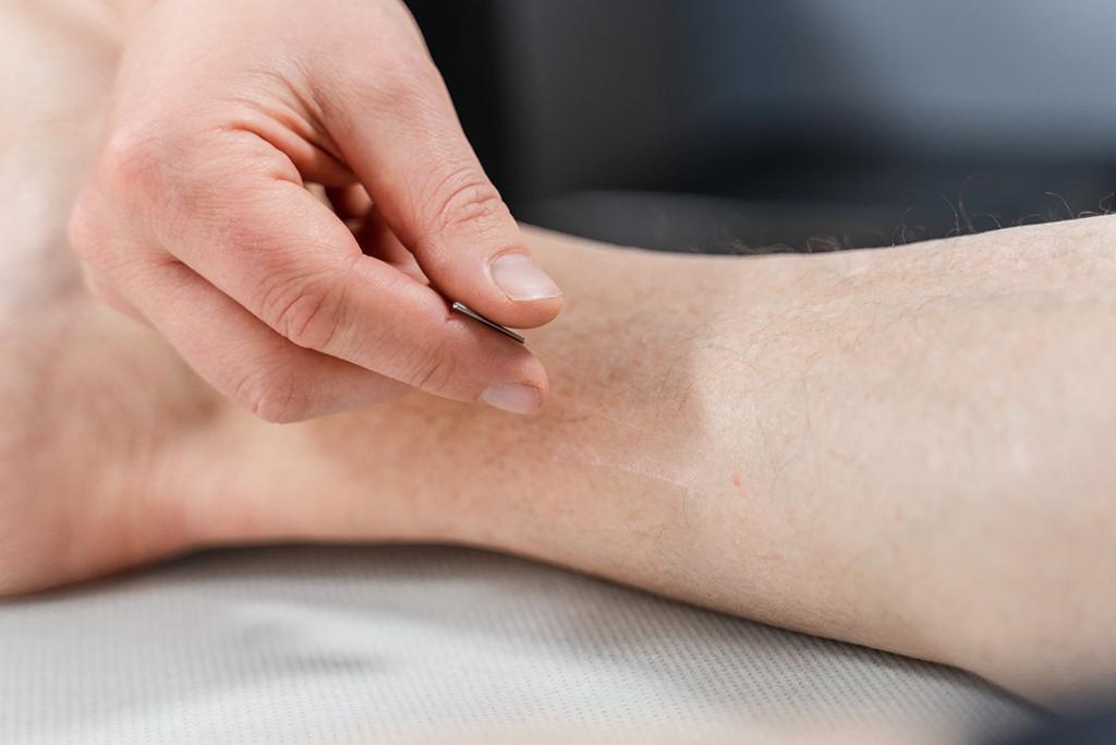 Akupunktur ved Vansjøklinikken